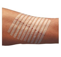 STERISTRIPS SKIN CLOSURE STRIPS 3MM X 75MM X (50 PACKS OF 5 STRIPS)
